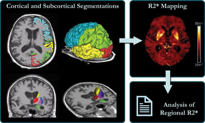 Alzheimer prognozu ile beyindeki demir birikimi arasında korelasyon tespit edildi