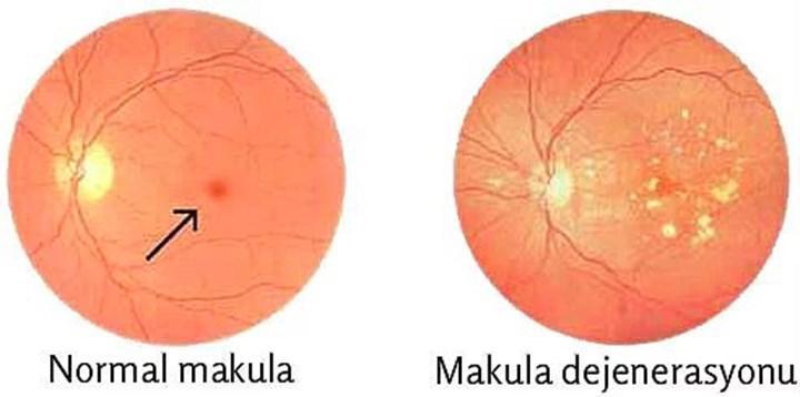 yasa bagli makula dejenerasyonu icin yapay retina gelistirildi127873 1 | Tekno Deha