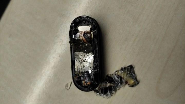 Xiaomi Mi Band 5 şarj olurken patladı: İşte detaylar
