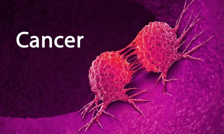 Kanser hücrelerinin kemoterapinin etkilerinden kaçış mekanizması incelendi