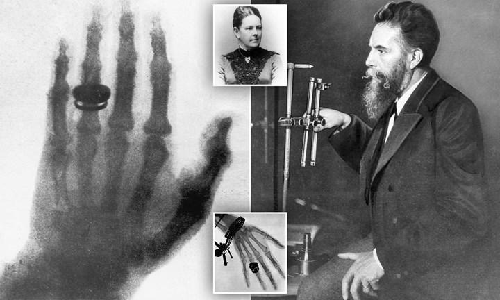 Taşınabilir X-ray cihazı geliştirildi