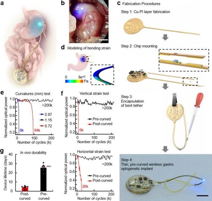 Obezite tedavisinde kullanılabilecek implant geliştirildi