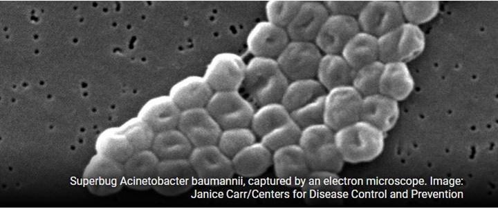 Antibiyotik direncine sahip bakteriyel enfeksiyonlar fajlarla tedavi edilebilir