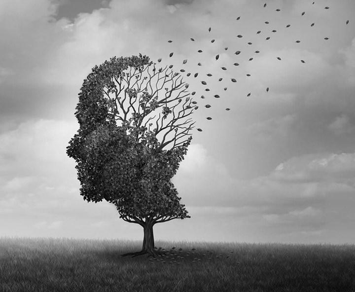 Alzheimer tedavisinde umut vadeden ilacın Faz 2 sonuçları yayımlandı