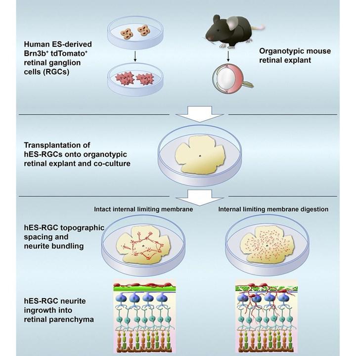 Glokoma bağlı geri dönüşümsüz hasar hücre nakilleriyle geri döndürülebilir