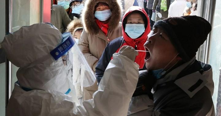 Anal bölgeden alınan örneklerle koronavirüs testi yapılabilir