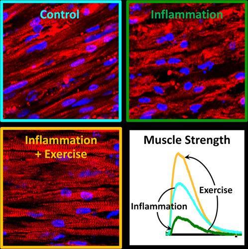 Araştırmalara göre egzersiz tek başına kronik inflamasyonu önleyebilir