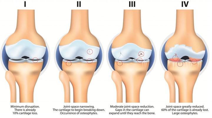 Osteoartrit tedavisinde kullanılabilecek enjeksiyon geliştirildi