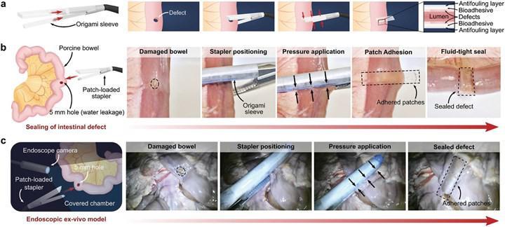 Laparoskopik operasyonlarda kullanılabilecek yama geliştirildi