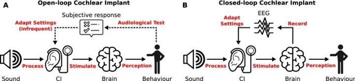 Koklear implanttan yararlanılarak beyin dalgaları ölçüldü