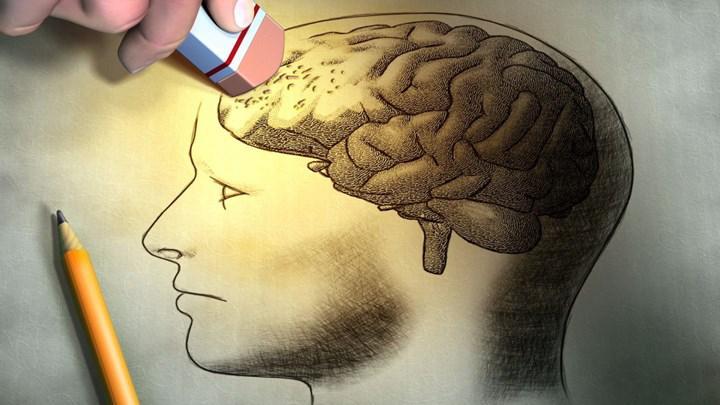 Amerika Birleşik Devletleri Alzheimer ilacını onayladı