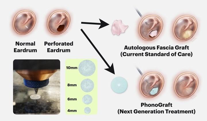 3D baskılı kulak zarı onarım yaması pazara hazır