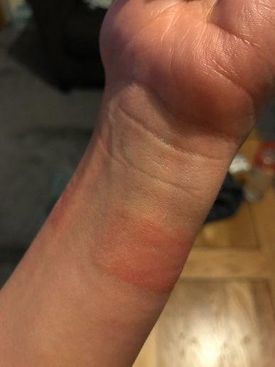 Apple Watch sahipleri saat yanıklarından şikayetçi