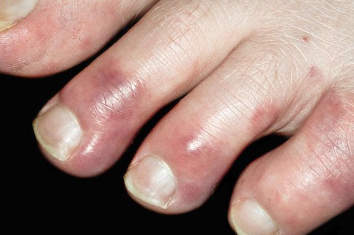 Covid parmağı
