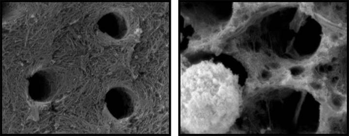 Bağışıklık hücrelerinin de dişleri çürütebileceği tespit edildi